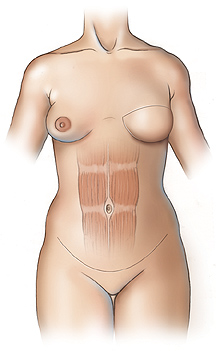 Figure 4 - Left breast reconstruction with DIEP flap. Note the intact rectus abdominis muscle.