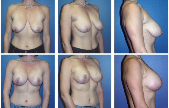 Breast Lift/Augmentation