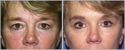 "55-year-old female who thought she looked ""tired"". The photos were taken 6-months after blepharoplasty and endoscopic forehead lift."