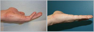 hand-xiaflex1