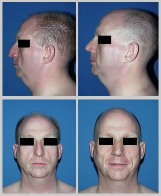 This is a 40-year-old male who always wanted to change the appearance of his nose. He underwent open rhinoplasty. Pictures Taken: 3 weeks post-op