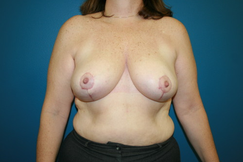 breast reduction photo-1