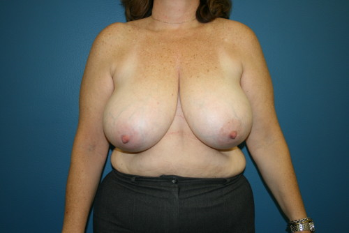 breast reduction photo-2