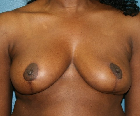 breast reduction postop