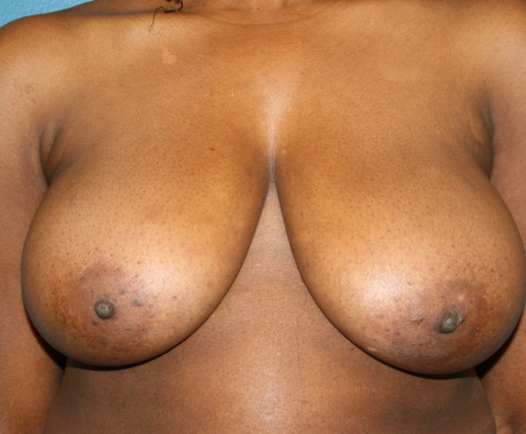 breast reduction preop